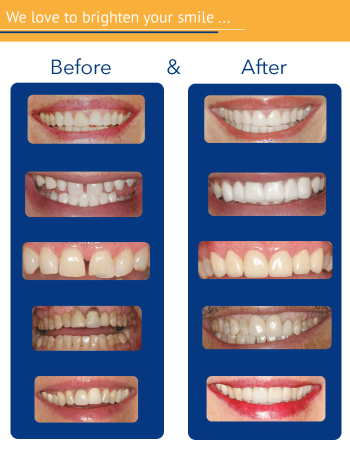 dentistry before-and-after pictures